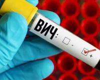 В области продолжает снижаться заболеваемость ВИЧ-инфекцией