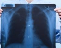 В Пензенской области снизилась заболеваемость пневмонией